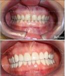before-after - Cancun Cosmetic Dentistry